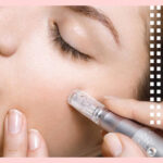 Woman Performing a Micro Needling Pen Treatment on Herself