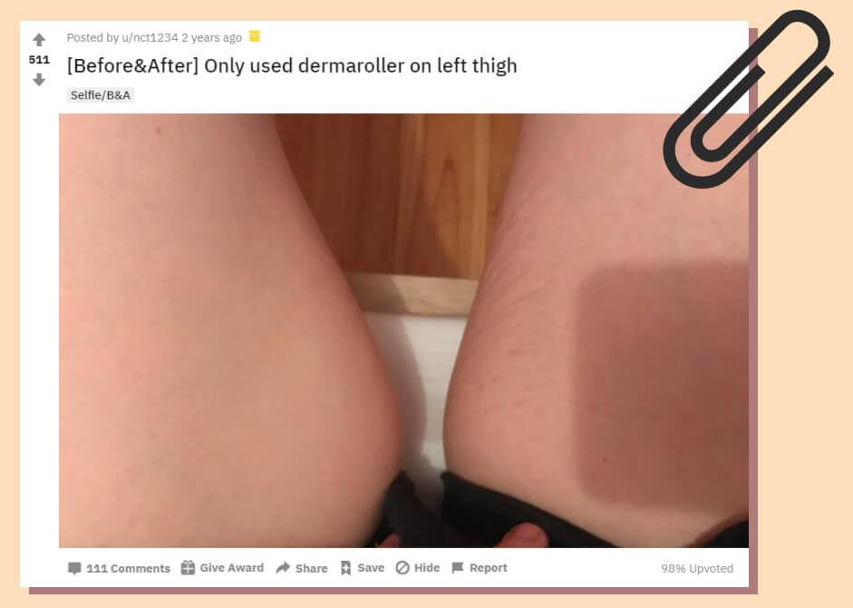 A Post Showing the Amazing Results from Using a Dermaroller for Stretch Marks