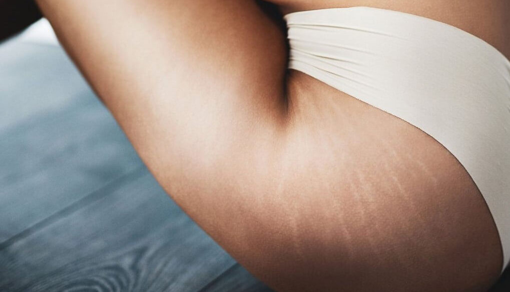 Using a Dermaroller for Stretch Marks is A Practical Solution