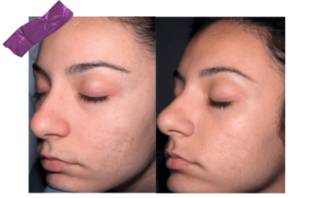 Derma Stamp: Before and After Depiction of Healed Blemishes