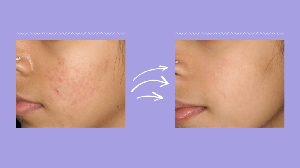 Derma Stamp: Before and After Showing Visibly Improved, Smooth Skin