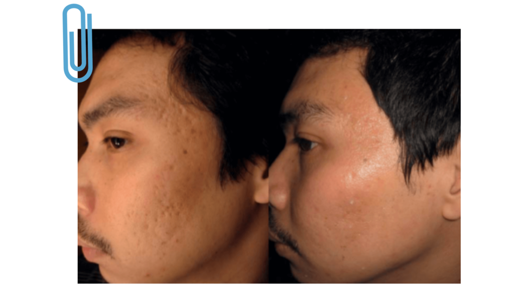Derma Stamp: Before and After Presentation of Improved Skin Tone and Appearance