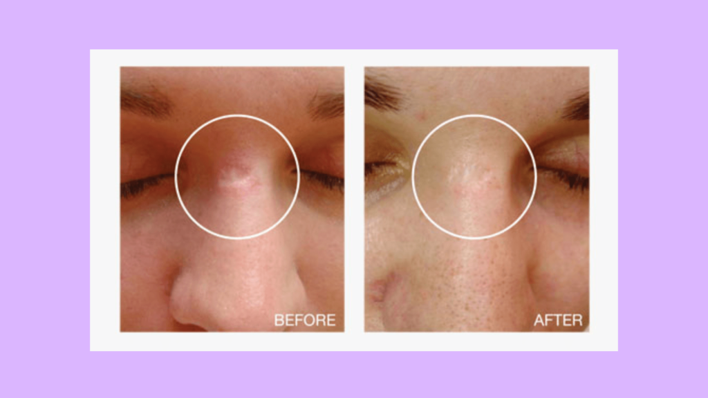 Derma Stamp: Before and After Showing Great Progress in Healing Deep Scars