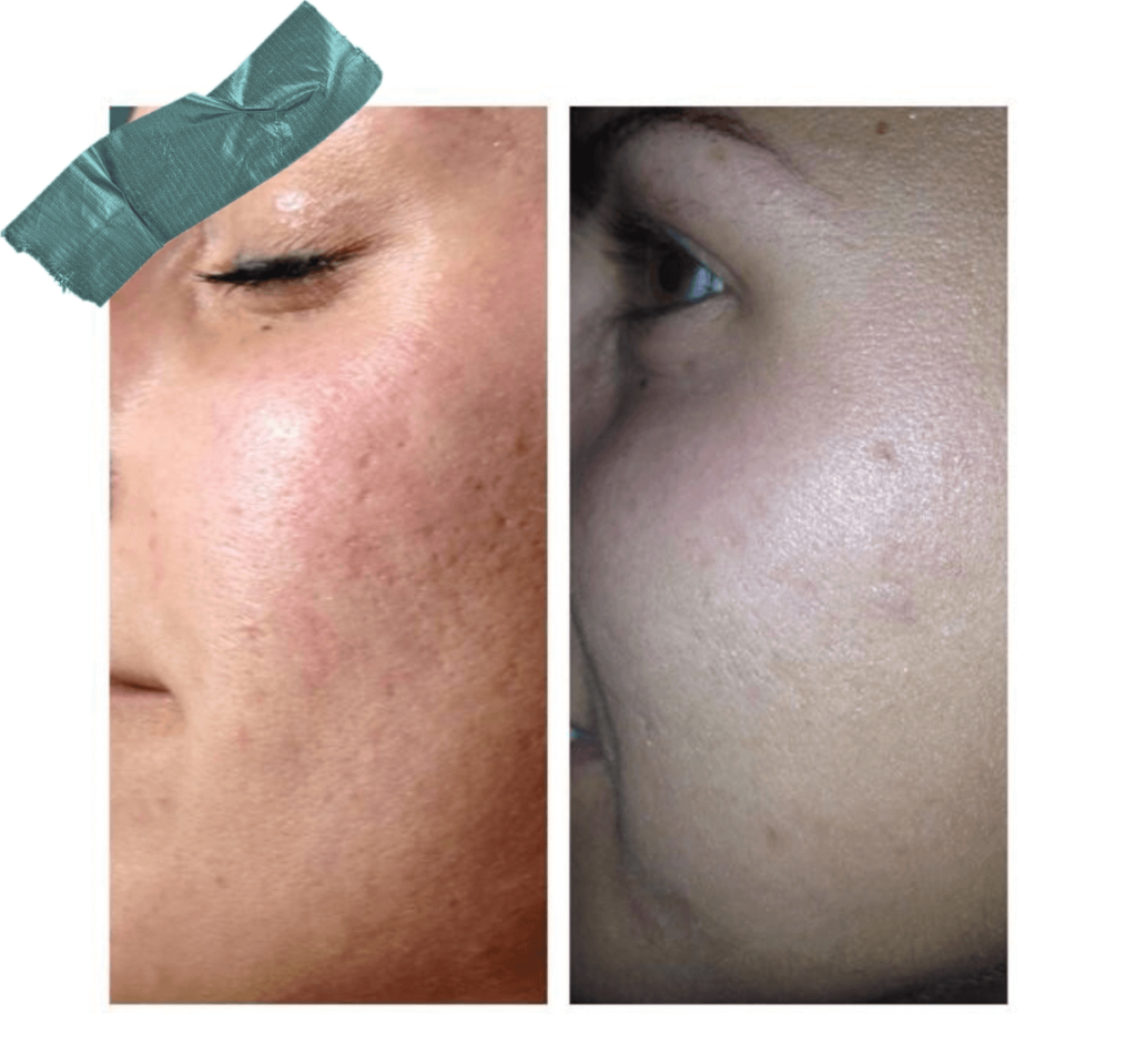 Derma Stamp: Before and After Using A Microneedling Tool for Improving Skin Texture